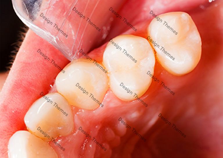 After-Dental-1